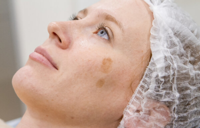 Как вывести возрастные пигментные пятна на лице народными средствами?